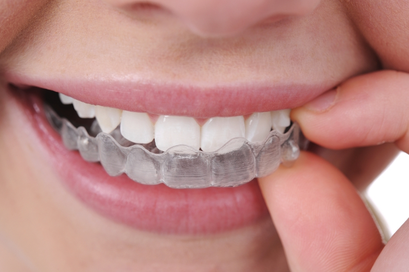 Invisalign Clear Braces | North York, Toronto, ON