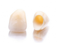 Example of Dental Crowns